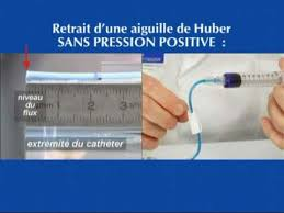 chambre implantable cip pose de perfusion et injection sur cip r cap ide pression positive