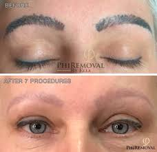 phiremoval tattoo and permanent makeup removal u2013 permanent makeup