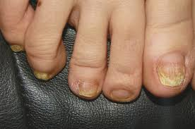 laser toenail fungus treatment advanced podiatry podiatrist in