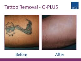 q plus c evo tattoo removal laser removes all treatable colours
