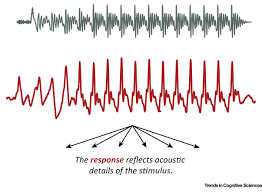 unraveling the biology of auditory learning a cognitive