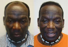 hairline restoration for black men black hair transplant cost best black hair 2017