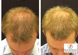 neograft recovery timeline neograft faqs published by buckhead hair restoration