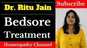 How To Get Rid Of Bed Sores ब डस र क इल ज How To Get Rid Of Bed Sores Youtube