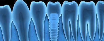Comfort Dental Garland Dental Implants Laurel Md Implant Dentist Garland Davis Dds