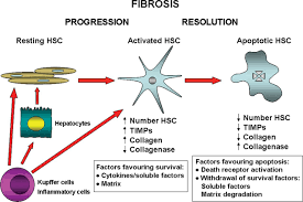liver fibrosis cellular mechanisms of progression and resolution