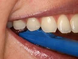 teeth whitening before and after wow its amazing what you can