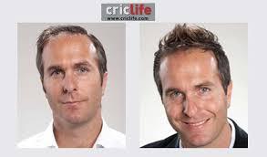 shane warne hair transplant 10 cricketers who went for hair transplant cricket country