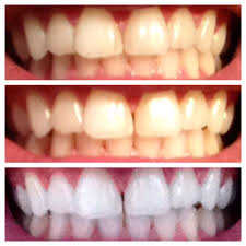 this is actually crazy 1 stained teeth 2 after brushing with