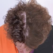 Laser Hair Growth Hat Amazon Com Capillus202 Laser Hair Growth Hat Professional Hair