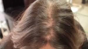 Women Hair Loss Treatment Hair Loss In Women Treatment Testimonial Hair Cubed Youtube