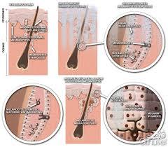uvb light therapy for vitiligo follicular repigmentation in vitiligo narrowband uvb phototherapy