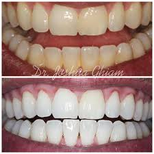 zoom whitening dentist west hollywood carthay circle l a