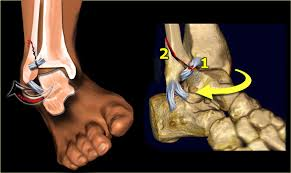 Ankle Ligament Tear Mri The Radiology Assistant Ankle Fracture Weber And Lauge Hansen