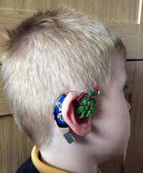 weave hair how in fife deaf got implant cochlear mom transforms son s hearing aids into cartoon characters so he