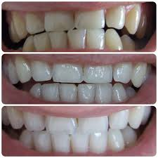 Teeth Whitening With Hydrogen Peroxide Everything You Wanted To Know About Whitening Welcome To Your