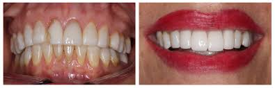 Best Way To Whiten Teeth At Home Cabrillo Dental San Diego Cosmetic Dentistry Cabrillo Dental