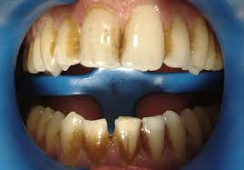 tooth whitening before and after french dentist in kensington