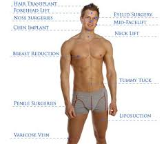 Popular cosmetic surgery procedures for men