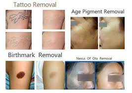q harmony the best tattoo removal and pigmentation treatment in