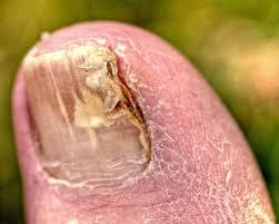 why toenail fungus needs to be treated idea digezt