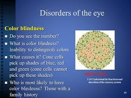 What Causes Eye Blindness 3 04 Functions And Disorders Of The Eye 3 04 Understand The