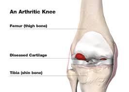 Knee Bony Anatomy Patient Education Knee Anatomy And Function Advanced