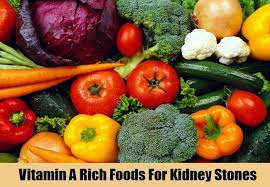 top tips to treat kidney stones herbal supplements