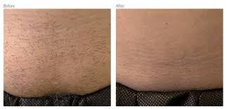 vectus laser hair removal reviews best place for laser hair removal in redding ca laser center in