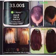 will hair skin and nail vitamins work the best hair 2017