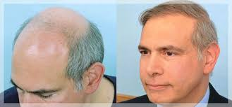 best hairtransplant in the world saratoga hair transplant center saratoga ny home