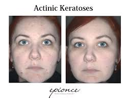 Epionce Skin Care Reviews Before U0026 After Transformation Gallery Ei Con Health U0026 Wellness