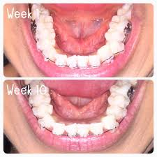 goody bands for teeth braces threehappywales
