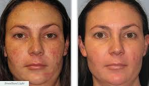 light treatment for skin broadband light total skincare centre