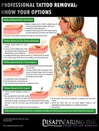 professional tattoo removal know your options infographics