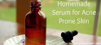 Serum Acne serum for acne prone skin holistic health herbalist