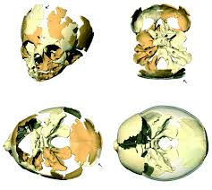 virtual reconstruction of the le moustier 2 newborn skull
