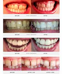 teeth whitening kit with led light bleaching trays before and after awesome auraglow teeth whitening