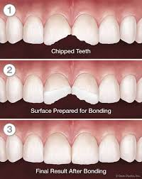Best Way To Whiten Teeth At Home Tooth Bonding