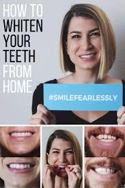 Teeth Whitening Colorado Springs 59 Best Teeth Whitening Before U0026 After Results Images On Pinterest