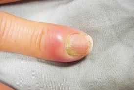 paronychia types causes symptoms and treatment u2014 healthdigezt com