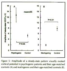 Psychogenic Blindness Comparison Of Visual Evoked Potentials In Patients With