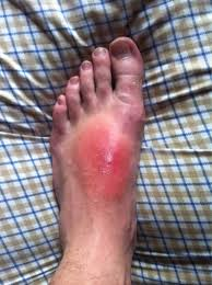 do ingrown hair hurt ingrown hair infection 101 fever and chills heat up the ice pick