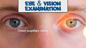 examination of the eyes and vision osce guide youtube