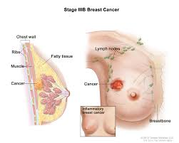 breast cancer treatment pdq u2014health professional version