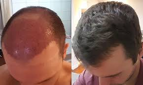 how thick is 1000 hair graft my fut hair transplant the first 5 months finch sells