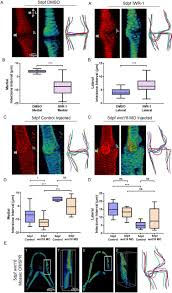 wnt signalling controls the response to mechanical loading during