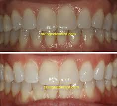 teeth whitening and bleaching calcaterra dds orange woodbridge ct