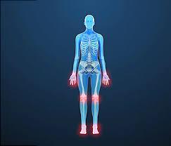 Webmd Human Anatomy Rheumatoid Arthritis Video Treatments For Stiff Painful Joints