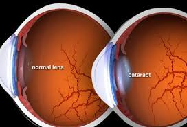 Cataract Leads To Blindness Due To Cataracts Causes Symptoms Vision Tests And Surgery